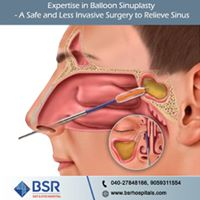 sinus_surgery_in_Hyderabad