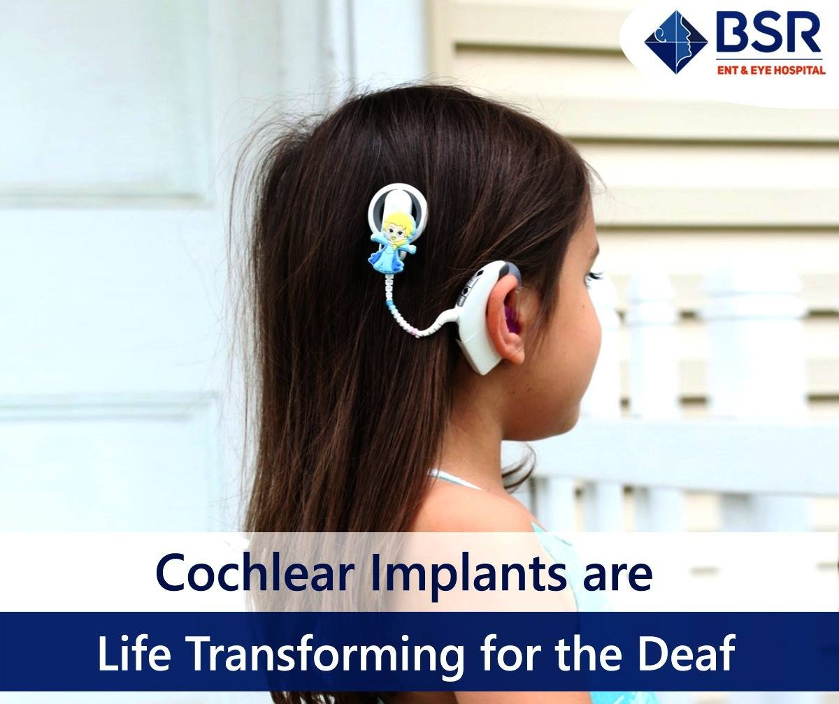 cochlear_implants_surgery_cost