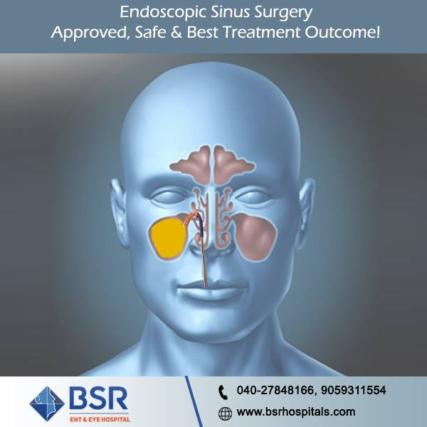 sinus_surgery_Hyderabad